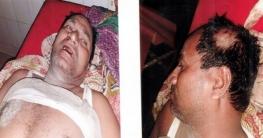 লক্ষ্মীপুরে সন্ত্রাসী হামলায় ব্যাংক কর্মচারী আহত